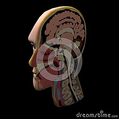 Headcut