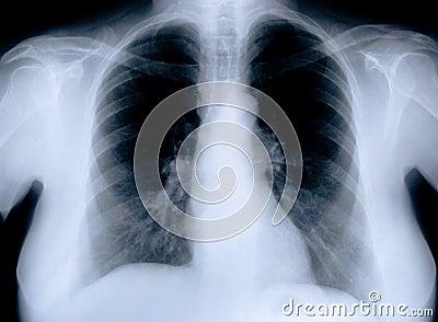 Health medical x ray