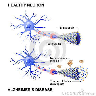 Free Healthy Cell And Neurons With Alzheimer`s Disease. Tau Hypothesi Stock Image - 86444371