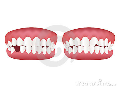 Healthy tooth model