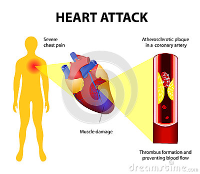 Heart    Attack Stock Vector  Image  44445942