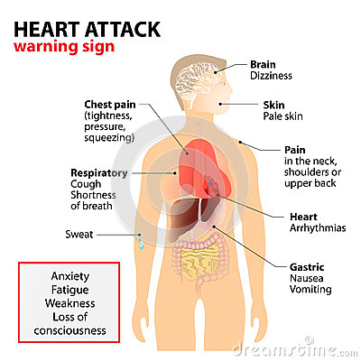 Free Heart Attack Symptoms Stock Photography - 65976842