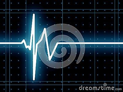 Heart beat ECG