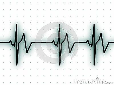 Heart beat on ECG screen