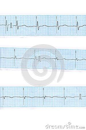 Heart. Blue cardiogram