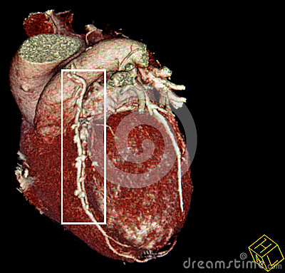Heart bypass surgery. CT-scan reconstruction