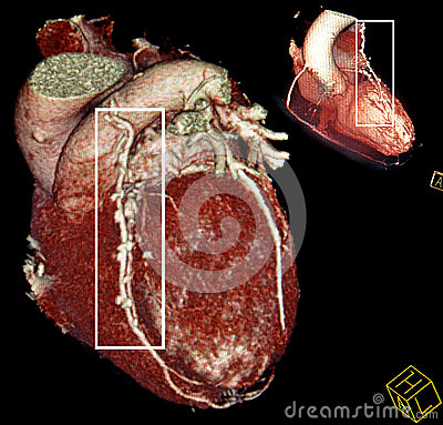 Free Heart Bypass Surgery. Multy-planar CT Royalty Free Stock Image - 29261736