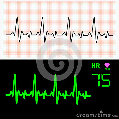 Free Heart Cardiogram Waves On Graph Paper And On Monitor. Vector Illustration. Stock Images - 90526664