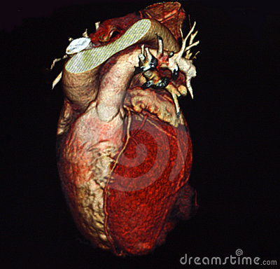 Free Heart Computed Tomography Stock Photography - 9798062