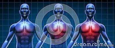 Heart illness medical chart