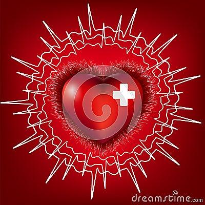 Heart normal electrocardiogram, EPS8