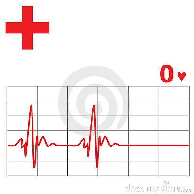 Free Heart Rate Monitor Royalty Free Stock Photo - 5852905