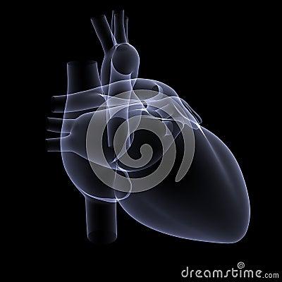 Heart X-Ray 1