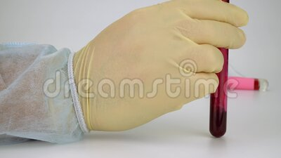 Heilung von Coronavirus Blutprobe mit Hand in Vakuumröhren Positives Testergebnis für den sich rasch ausbreitenden neuen Covid-19 stock video