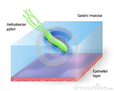 the helicobacter pyloris way of life essay Information on the symptoms, treatment and relief of helicobacter pylori and gastritis  medical studies are under way to determine the relationship between the two and how an infection in the stomach can be related to a.