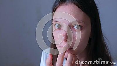 Het portret van een vrouw slaat haar zere kant op haar lip met zalf van herpes-infectie stock footage