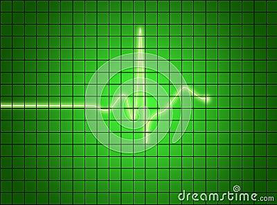 Het Signaal van het electrocardiogram