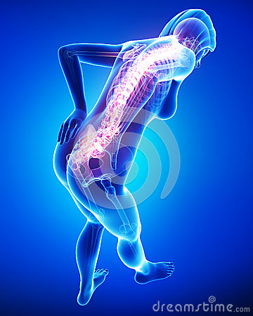 Highlighted back pain in female