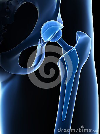 Free Hip Replacement Royalty Free Stock Photos - 30724938