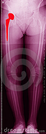 Hip replacement x-ray