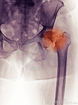 Free Hip X-ray, Fracture And DJD (degenerative Joint D) Stock Photos - 15182783