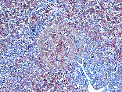 Histopathology Of Wilsons Disease Stock Photo Image