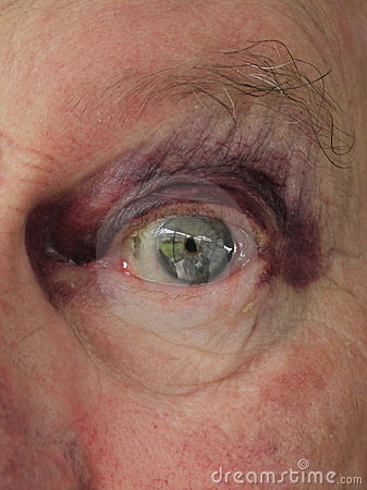 Hombre mayor: ojo morado magullado