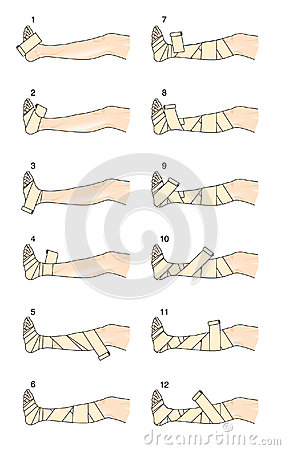 How to apply a Putter leg bandage