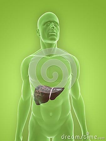 Human bad liver