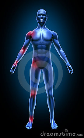 Human body joint pain inflamation medical x-ray