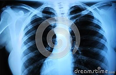 Human body s radiograph - lung