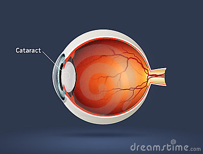 Human eye - cataract
