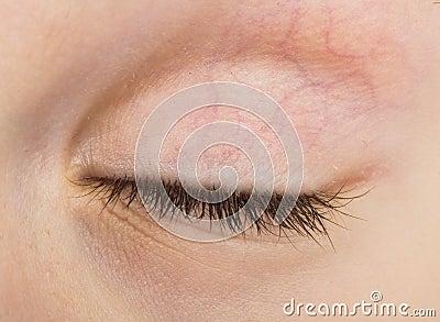 Human eye closed