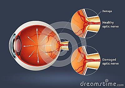 Human eye - retinal detachment
