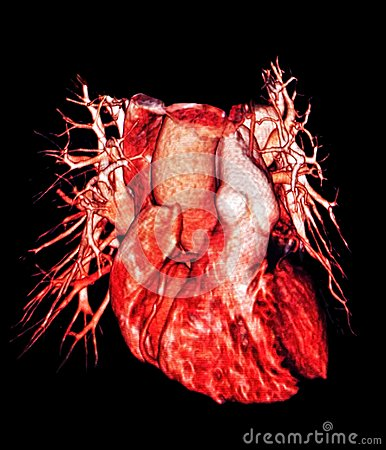 Free Human Heart And Lung Vessels, CT Image, 3D Royalty Free Stock Images - 110410109