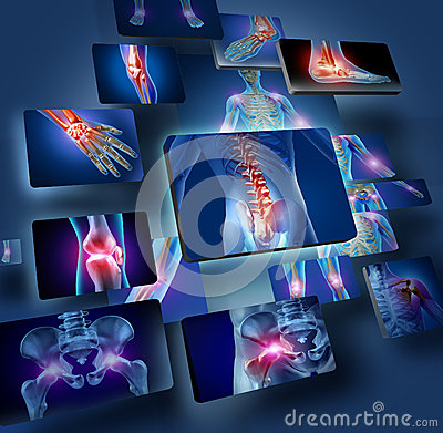 Free Human Joints Concept Royalty Free Stock Photography - 28938137