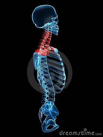 Human neck with pain