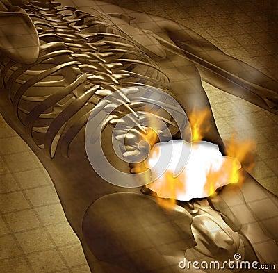 Human Painful Back