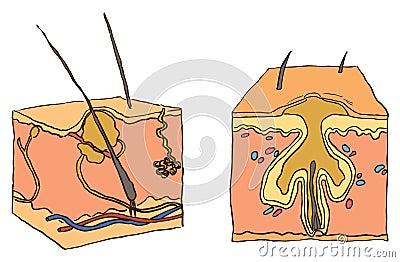 Illustration for acne