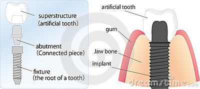 Illustration of dental implant