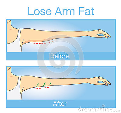 Free Illustration Of Before And After Lose Arm Fat Stock Photos - 63663793