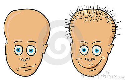 Illustration - patient with a bald head and hair