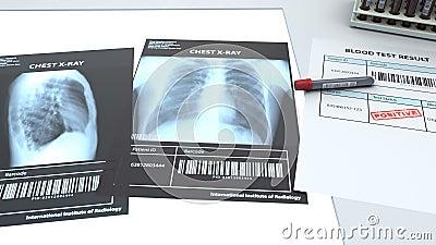 2 imágenes de rayos X en pulmón y análisis de sangre para detectar virus metrajes