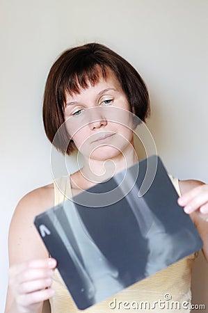 Imagem do raio X da terra arrendada da mulher
