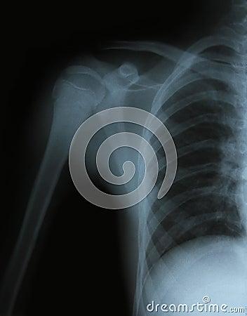 Imagen de la radiografía de los huesos