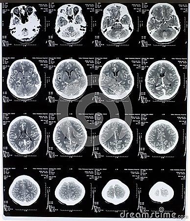 Imagen de MRI del cerebro
