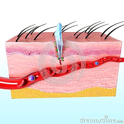 Immune Response System Of Human Skin Royalty Free Stock ...