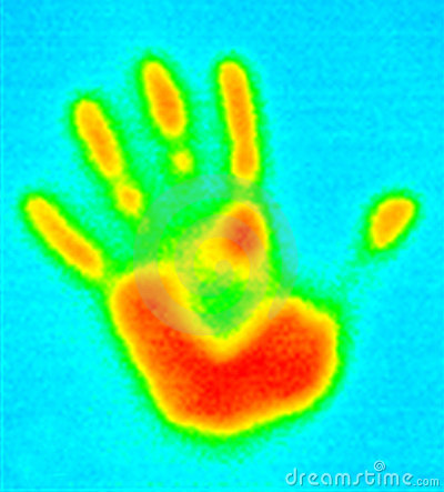 Impression de Thermographe-Main