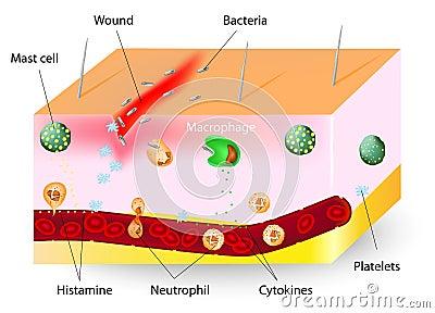 Inflammation. innate immune system