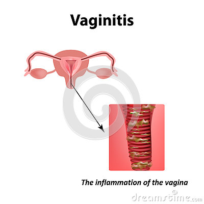 Inflammation of the vagina. Vaginitis. Infographics. Vector illustration on  background